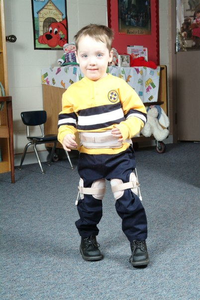 Ребенок в детском отводящем ортезе S.W.A.S.H.